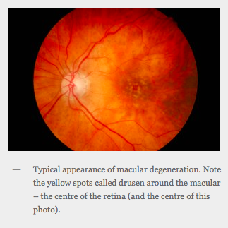 Typical appearance of macular degeneration. Note the yellow spots called drusen around the macular – the centre of the retina (and the centre of this photo).
